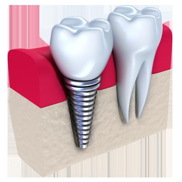 implants-360x360